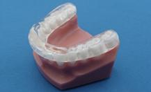 Maxillary Anterior Guidance Orthodontic Split for TMJ issues