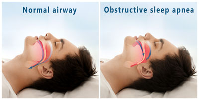 Normal vs Obstructive Sleep Apnea Sleeping